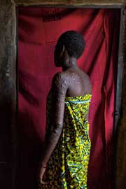 Picture of a scarred Nigerian church bombing victim Photograph by Ed Kashi