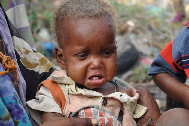 child-from-drought-stricken_-629x418